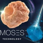 Moses Laser for kidney stones