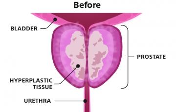 Illustration 1 – Before Rezūm Procedure