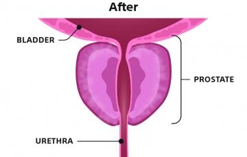 Illustration 3 – After Rezūm Procedure