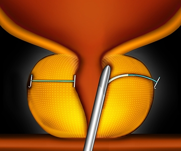 prostate-step2