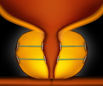 prostate-step3